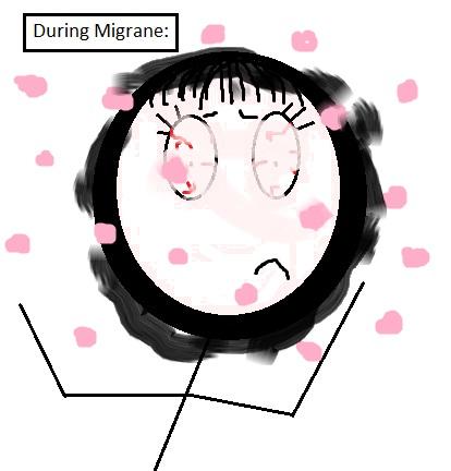 Migrane2